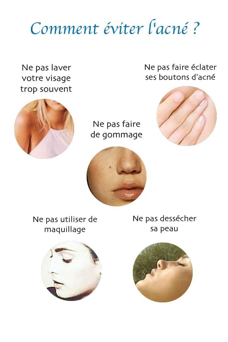 éviter l'acné